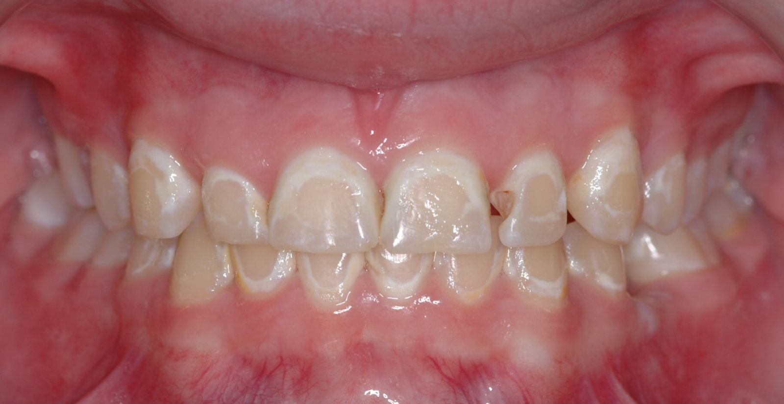 braces decalcification
